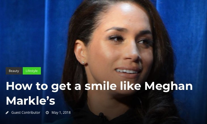 How to get a smile like Meghan Markle's
