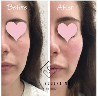 Cheek Fillers Treatment