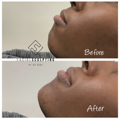 Double chin removal sculpting