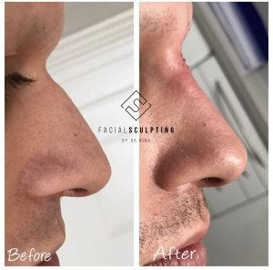 Non Surgical Nose Job London