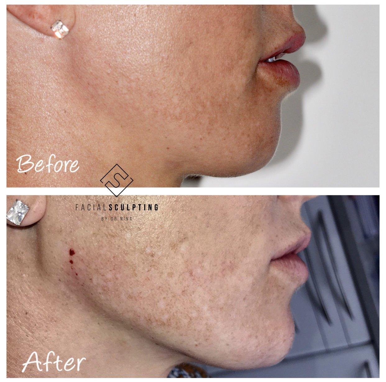 Jawline fillers | Facial Sculpting - Jawline Fillers