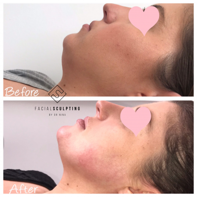 Jawline Fillers Treatment in London