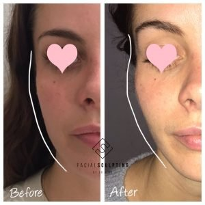 non-surgical face sculpting