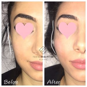 Cheek sculpting | Facial Sculpting Cheek Fillers London