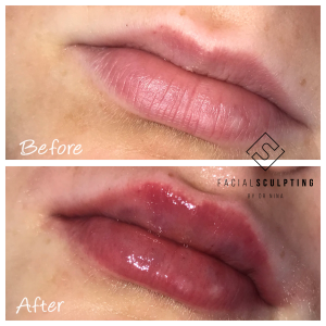 lip enhancement london