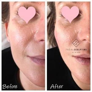 Face shape sculpting | Facial Sculpting