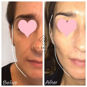Facial Sculpting Treatment