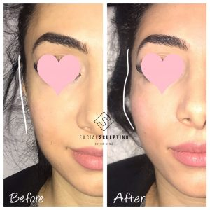Heart Shape Facial Sculpting