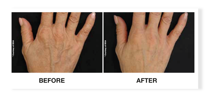 Profhilo hands