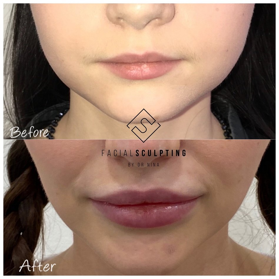 Lip Filler In London Before and after