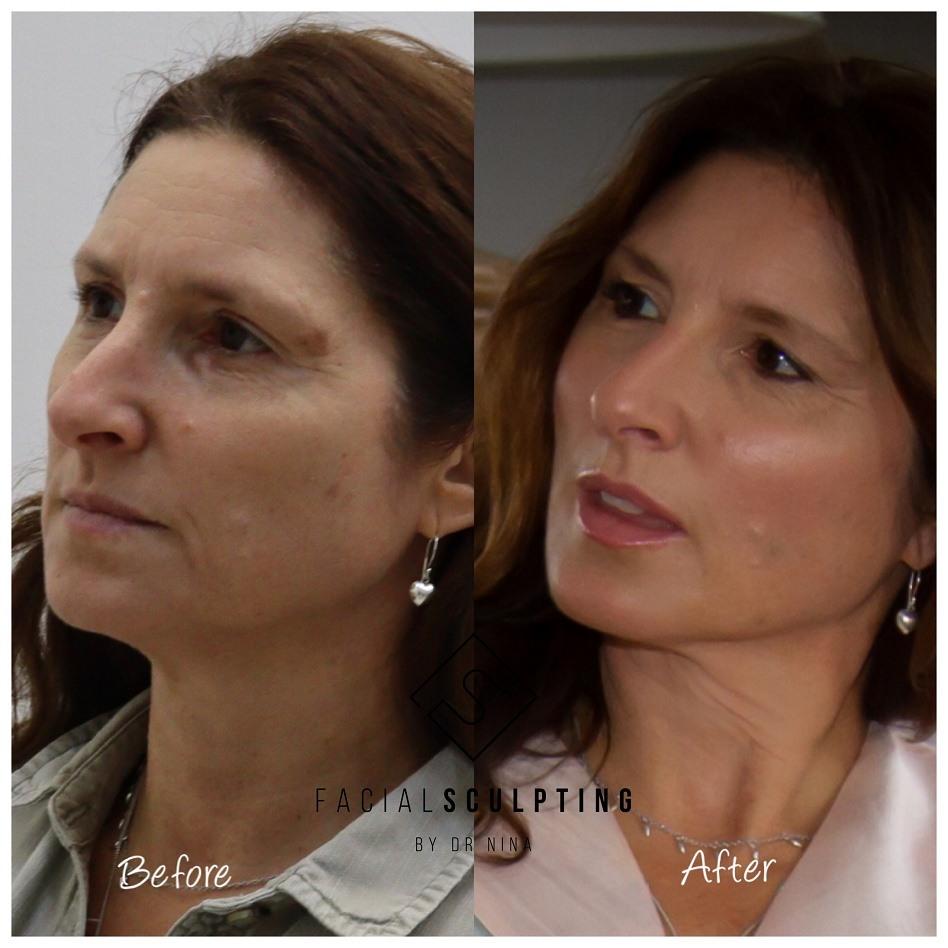 Best Skin Tightening Treatments thread lift