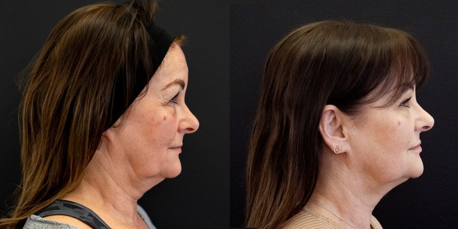 endolift before and after