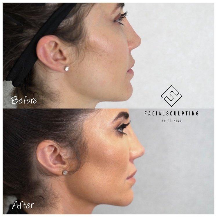 Dr Nina Face Lift