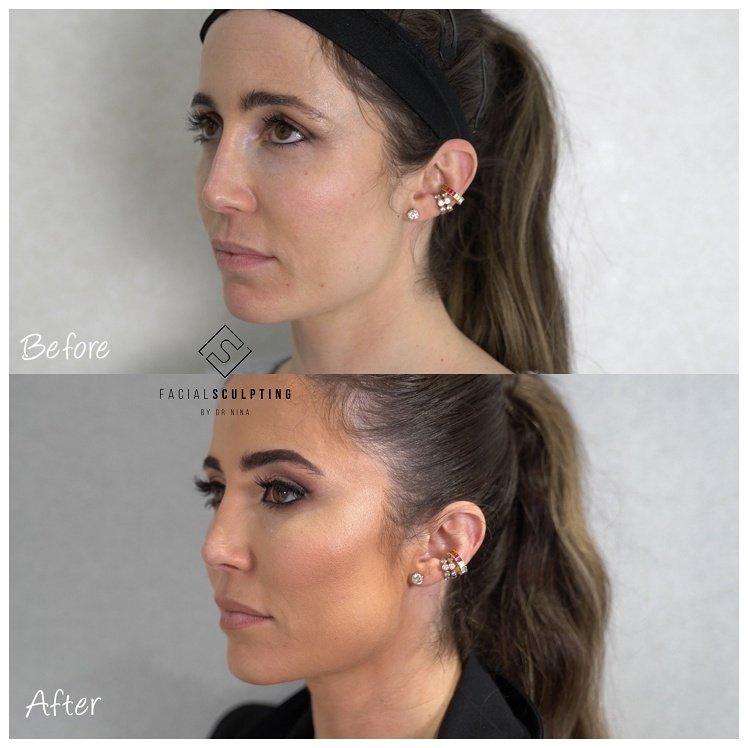 Nina's Face Lift